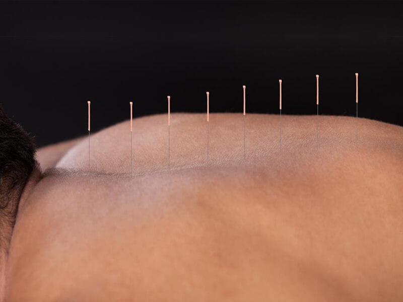 Manualna terapija in masaže Bruno Modno frizerstvo Frizerski salon Yvonne Dry Needling 2