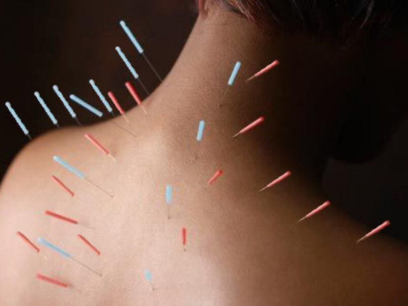 Manualna terapija in masaže Bruno Modno frizerstvo Frizerski salon Yvonne Dry Needling 3