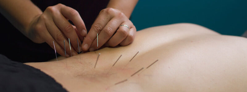 Manualna terapija in masaže Bruno Modno frizerstvo Frizerski salon Yvonne Dry Needling 4