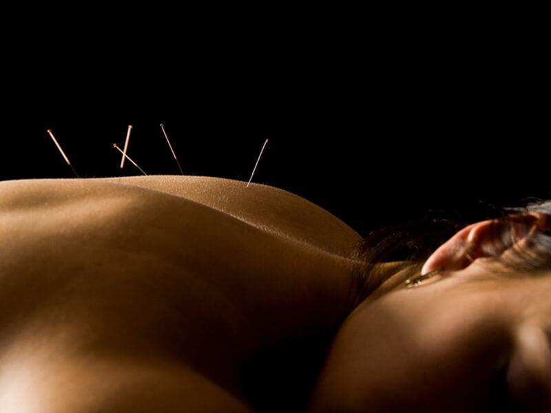 Manualna terapija in masaže Bruno Modno frizerstvo Frizerski salon Yvonne Dry Needling 5